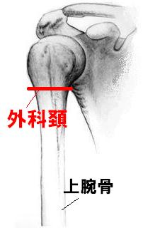 humerus_surgical_neck_fracture_img1
